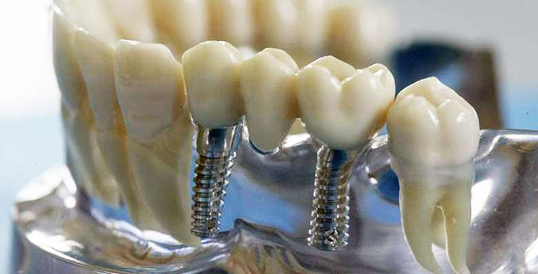 имплантация зубов в нашем городе
