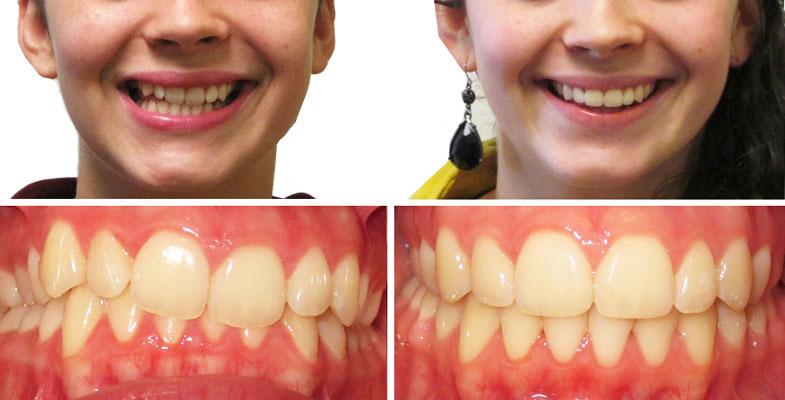 Шатаются зубы после установки брекетов